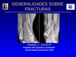 FRACTURAS GENERALIDADES.PPT